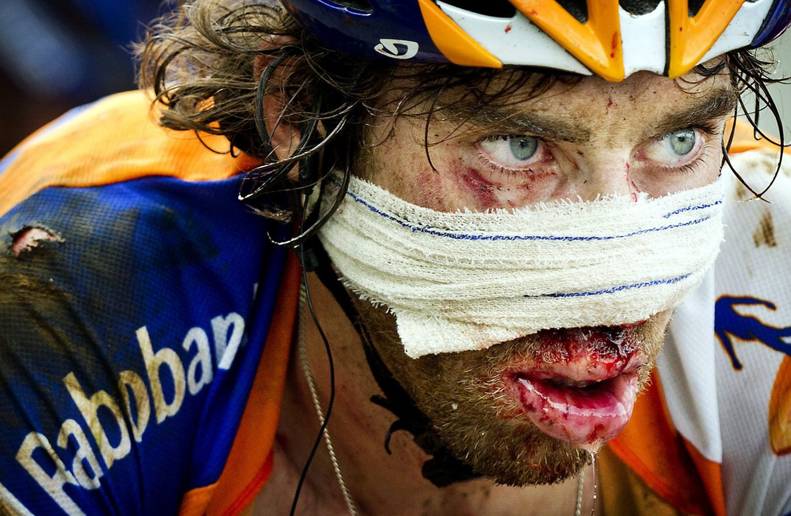 A photograph made available on 17 July of Dutch Rabo rider Laurens ten Dam is covered with blood after he crashed on the descent of the Col d'Agnes during the fourteenth stage of the Tour de France, France, 16 July 2011. The Dutch rider finished the stage with gauze wrapped around his face, covering his bloodied nose. (KEYSTONE/KEYSTONE/EPA/KOEN VAN WEEL)